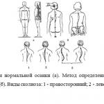 Иллюстрация №2: Осанка (Рефераты - Физическая культура).