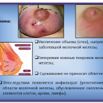 Иллюстрация №2: сестринский процесс в профилактике мастита (Презентации - Медицина).